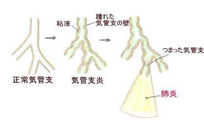 連載童話「たばこ王国」第6回 文・絵:吉田 仁