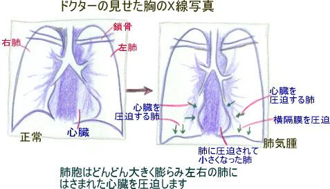 連載童話「たばこ王国」第7回 文・絵:吉田 仁